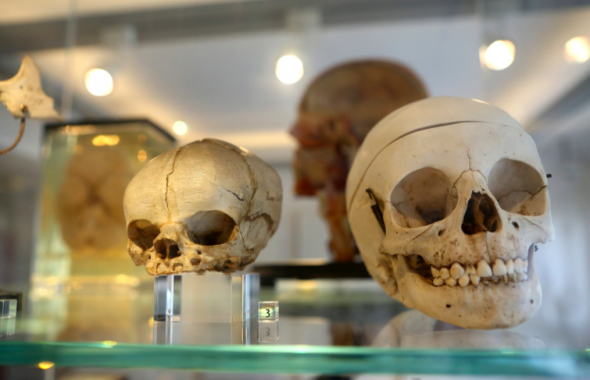Crânios humanos numa exposição sobre história da anatomia, em 2016, em Berlim, Alemanha ADAM BERRY/GETTY IMAGES