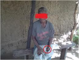 acusada de feitiçaria, mão decepada, foto de Carlos Serra