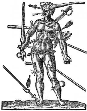 'As feridas da guerra' por Ambroise Paré in Opera Chirurgica (1594).